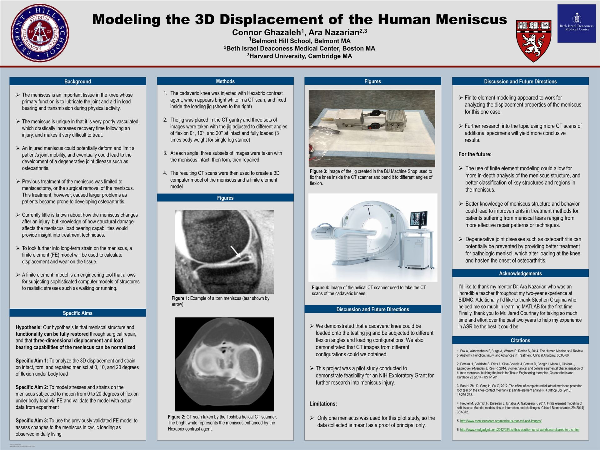 Connor Ghazaleh-Modeling the 3D Displacement of the Human Meniscus