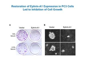 Restoration of Ephrin-A1 Expression Negatively Regulates Malignant Behaviors of Prostate Cancer Cells