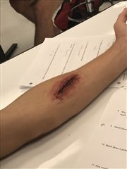SEEN ON SOCIAL: Anatomy Lab Wound Care